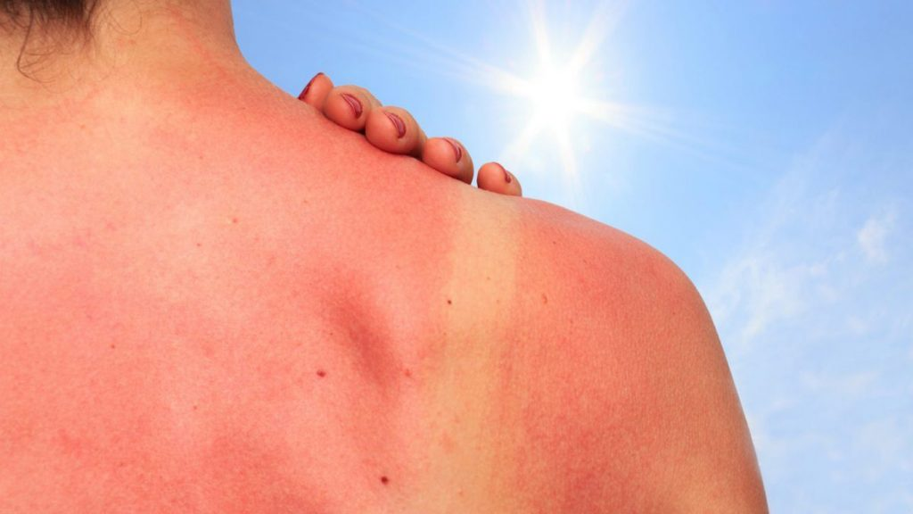 Lady with clear sunburn on her shoulders